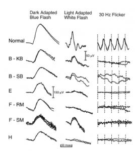 Figura de Ayaggari et al., 2000 (2)